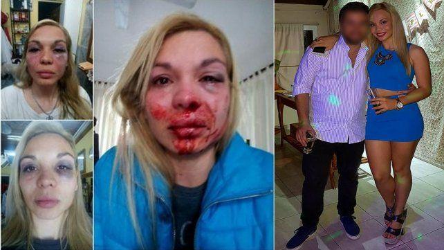 A una personal trainer santafesina le desfiguraron la cara a golpes