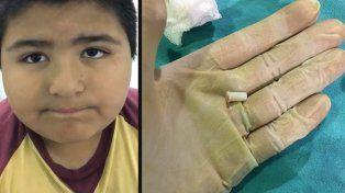 Un nene se tragó un silbato y se hizo viral en las redes