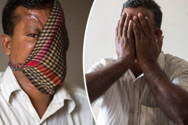 Perturbador:a 22 años del ataque de un tigre se animó a mostrar la brutal secuela y a pedir ayuda