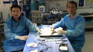 Fue un éxito el primer trasplante de cabeza en China
