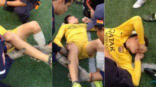 El impactante momento cuando le acomodan la rodilla a chico