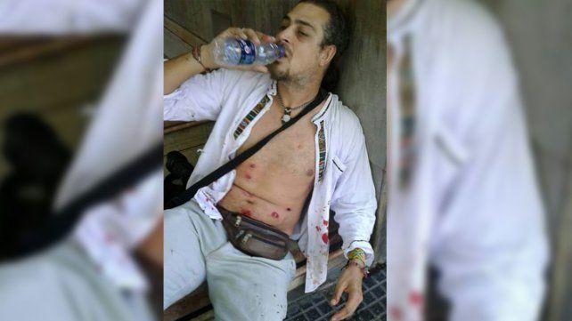 Quién es el fotógrafo que recibió diez impactos de balas de goma