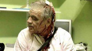 Así le quedó el rostro a Julio Bazán tras la agresión que sufrió frente al Congreso