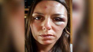 Una santafesina fue atacada y acuchillada en un cerro de Ecuador
