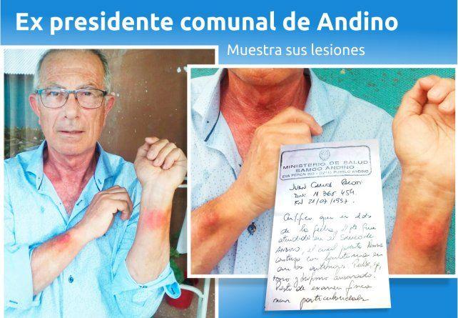 Expresidente comunal denunció haber sido golpeado por el actual titular de la Comuna