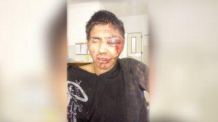 Vecinos le dieron una brutal golpiza a un ladrón que le quiso robar el celular a una nena