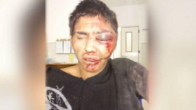 Vuelven a detener a joven que intentó robar un celular y fue golpeado por vecinos