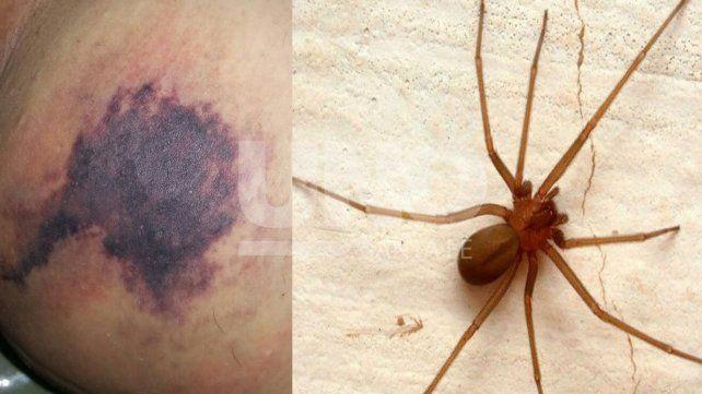 Alertan sobre picaduras de las arañas rinconeras en la provincia