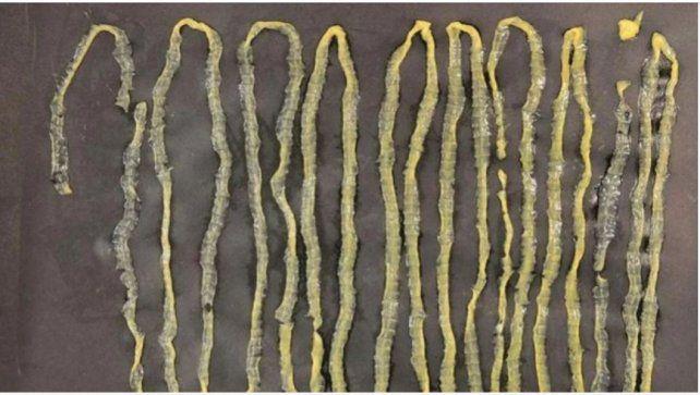 Descubrieron un parásito de tres metros de largo en el estómago de un hombre que comía mucho sushi