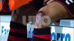 Impactante lesión de Bou en México
