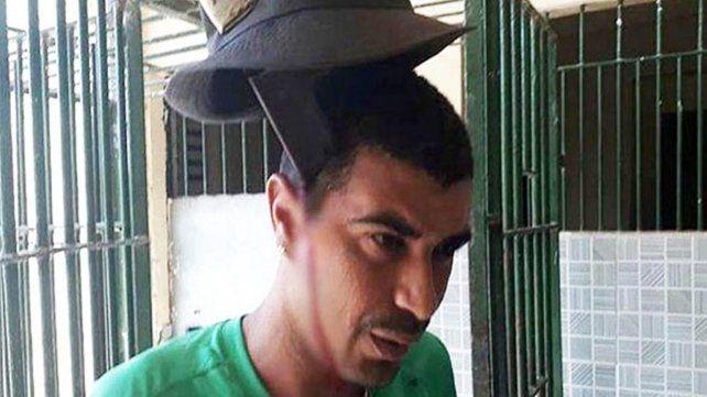 Preso brasileño con un machete clavado en la cabeza ni se inmuta
