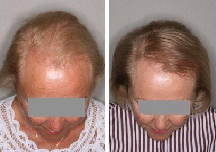 Más cabello, con plasma rico en plaquetas, hoy es posible en Santa Fe