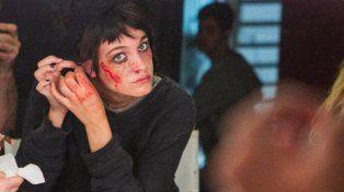 Las impresionantes fotos de Oriana Sabatini rasguñada y golpeada