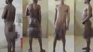 Operaron al hombre que tenía un metro de pene y cinco kilos de testículos
