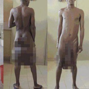 operaron al hombre que tenia un metro de pene y cinco kilos de testiculos