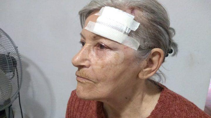 La mujer asaltada y golpeada por los delincuentes