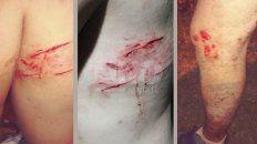 Las lesiones que le provocaron los canes.