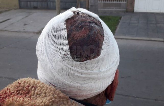 Las heridas que sufrió el vecino en el intento de robo.