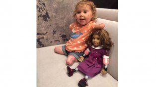 Una pequeña consiguió una muñeca que está amputada igual que ella