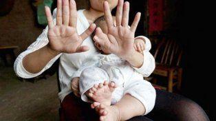 Asombro por el bebé chino que tiene 31 dedos