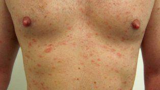 La sarna puede infectar fácilmente a las parejas sexuales y otros familiares en casa.